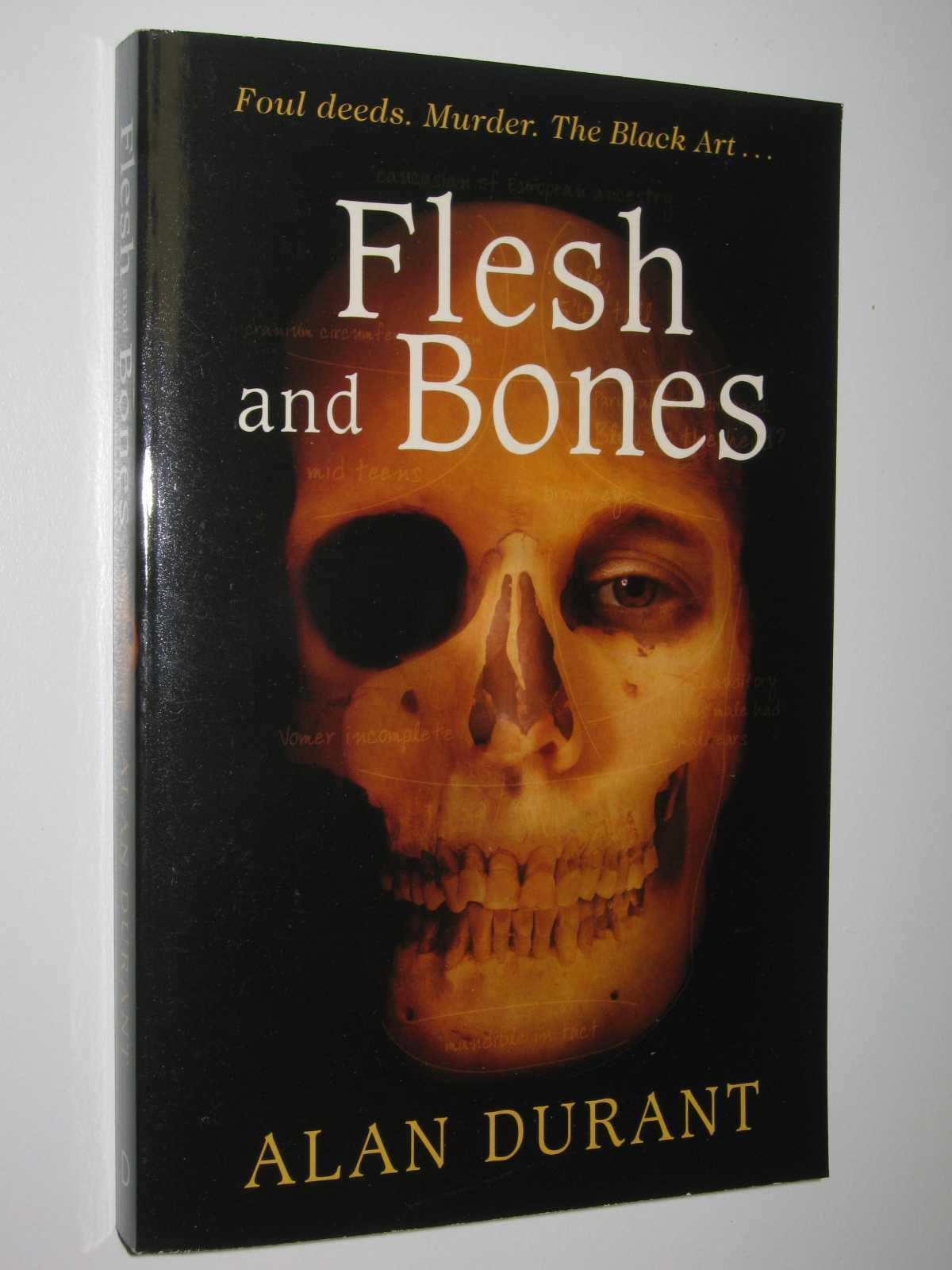 Image for Flesh and Bones